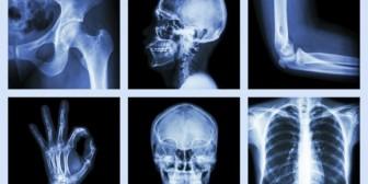 4 dietas que pueden causarte descalcificación en los huesos