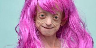 Tiene 11 años, padece una rara enfermedad y la discriminan sus maestros (Foto)