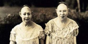 """Los """"monstruos"""" de American Horror Story sí existieron y aquí están las fotos"""