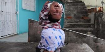 La inspiradora historia del brasileño que nació con la cabeza al revés