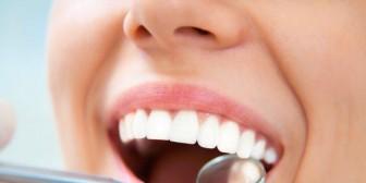 Cáncer oral o bucal: 11 síntomas que debes conocer