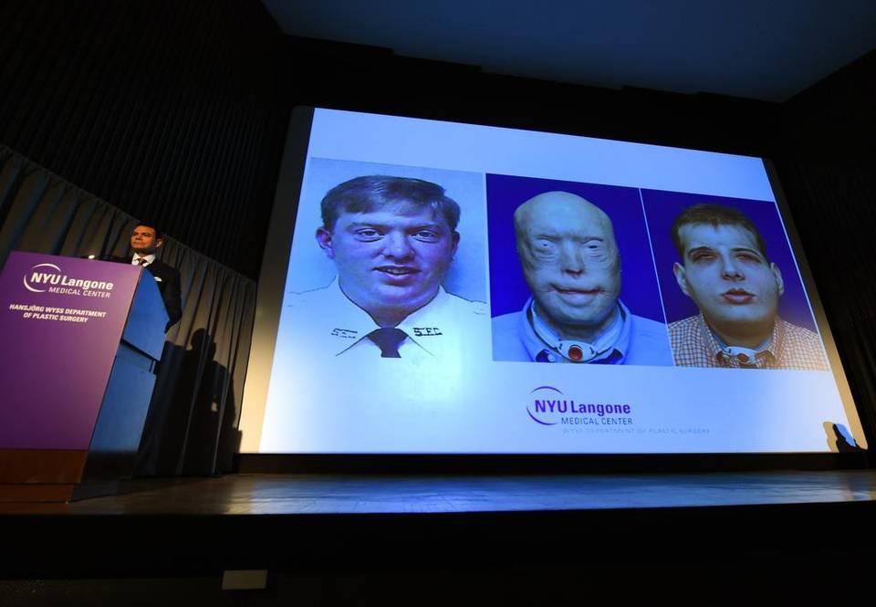 Eduardo Rodríguez, jefe del departamento de cirugía plástica, lideró la operación luego de un año de preparativos, anunció el centro médico.