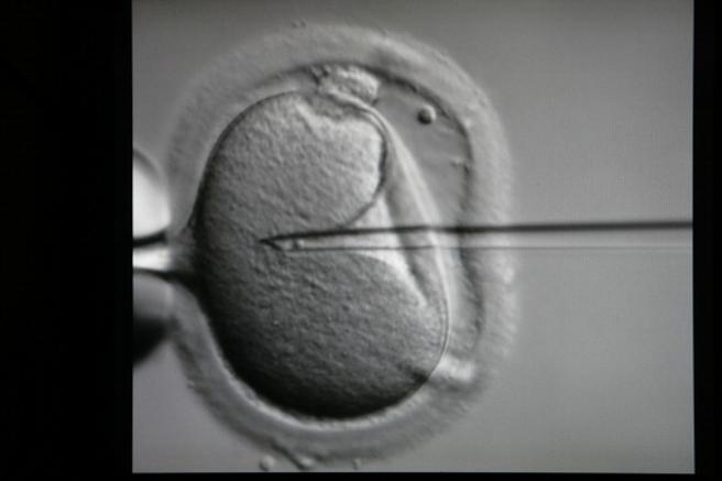 Imange de archivo de la fecundación in vitro