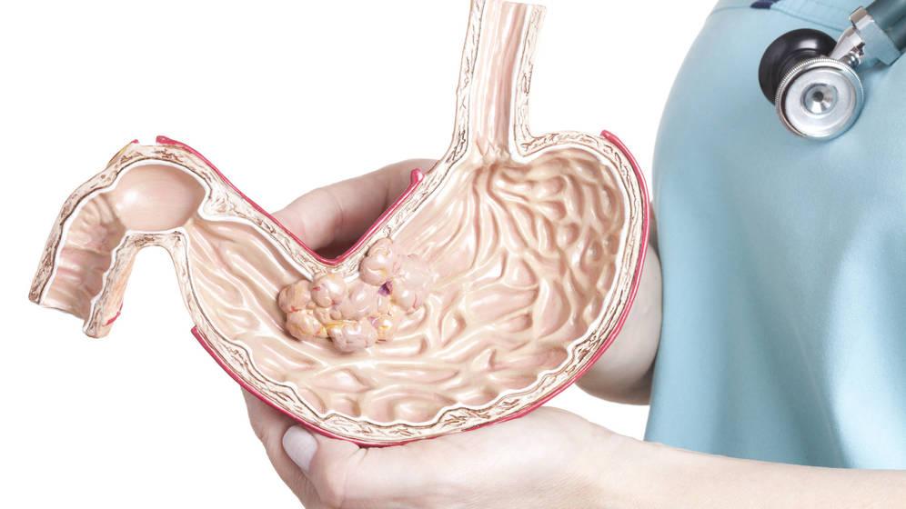 Foto: El cáncer de estómago es el sexto más frecuente en España. (iStock)