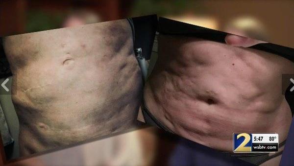 Dos muestras de las lesiones que causó la médica que hacía videos musicales mientras operaba.