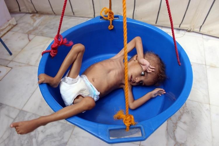 Un niño yemení gravemente desnutrido. Yemen enfrenta una crisis humanitaria y millones de personas sufren las consecuencias de(ESSA AHMED / AFP)