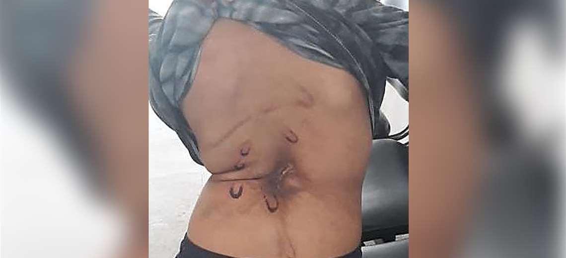 El menor tiene secuelas recientes y antiguas de las lesiones el cuerpo. Foto: Fiscalía
