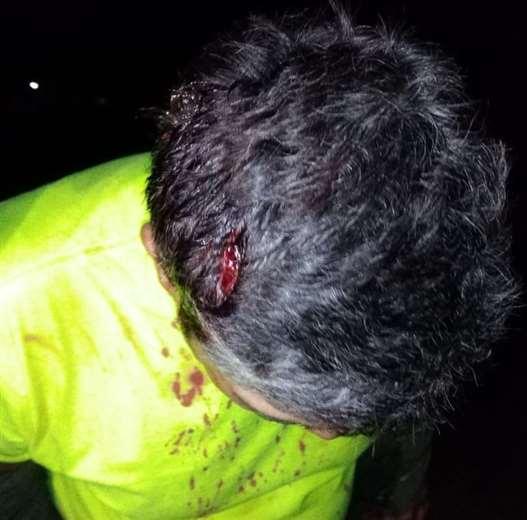 Enfrentamiento en Santa Rosa de la Roca/Foto: Vidal Rosado