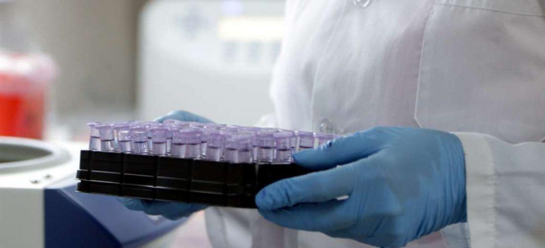 Muestras en laboratorio (Fotografía: Fuad Landívar)
