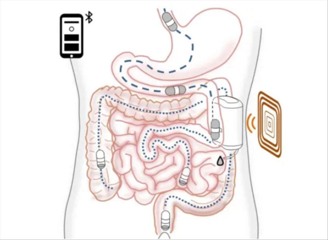 robot insulina