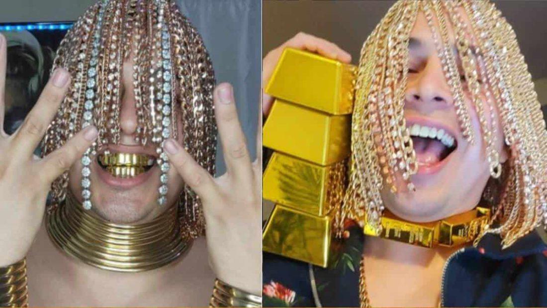 Rapero se implantó cadenas de oro en la cabeza y asegura ser 'semidiós'
