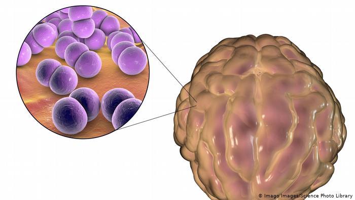 La meningitis es una inflamación de la membrana que envuelve el cerebro.