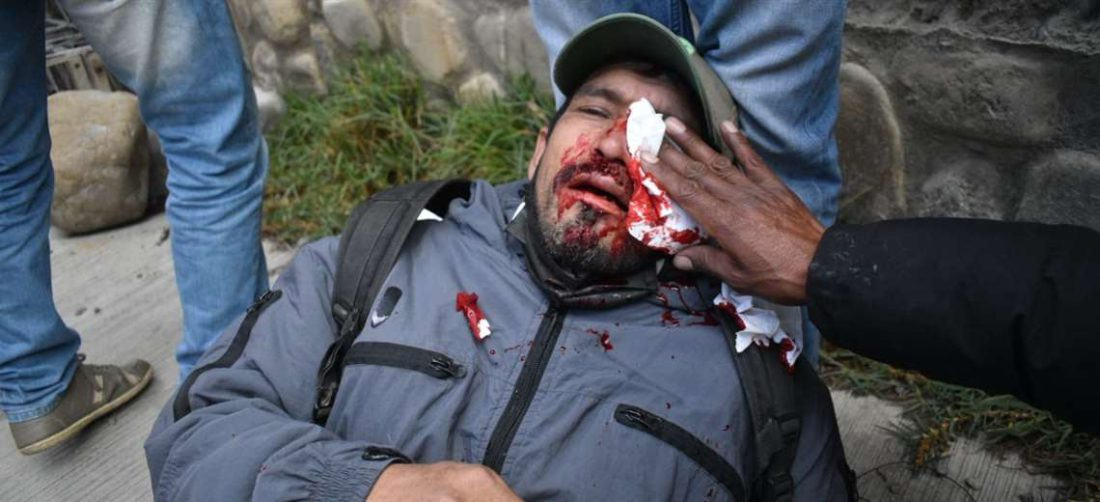 Uno de los heridos del miércoles fue socorrido por los propios cocaleros