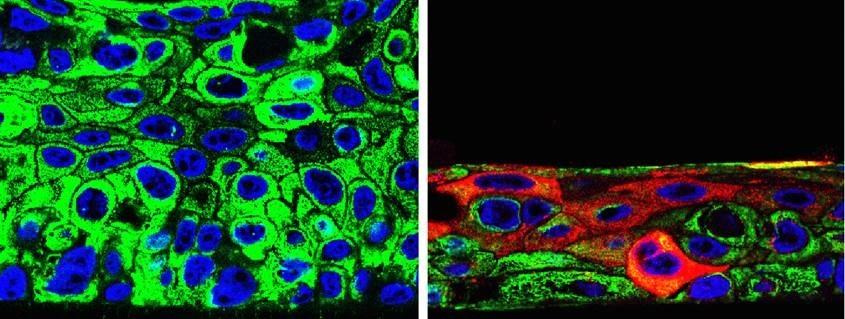 Los científicos probaron que el tratamiento redujo los tumores en pacientes con metástasis (Centro de Investigación del Cáncer CSIC/Universidad de Salamanca- EFE)